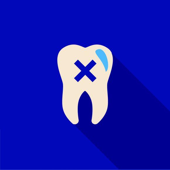 Endodontinis gydymas